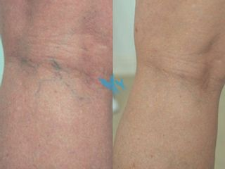 Antes y después Escleroterapia