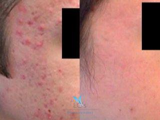 Antes y después - Eliminar acné activo - Acnelan