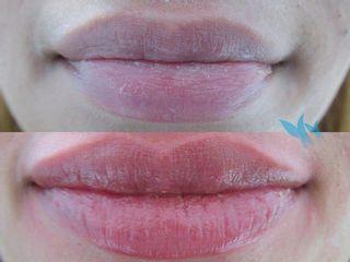 Antes y después Aumento de labios con juvederm ultra 3