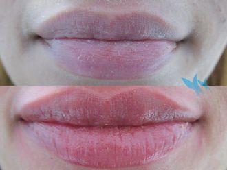 Aumento labios - 630291