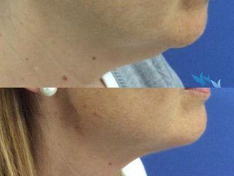 Rejuvenecimiento facial-630292
