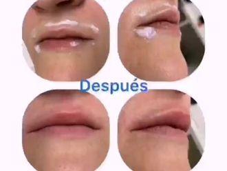 Aumento labios-738654