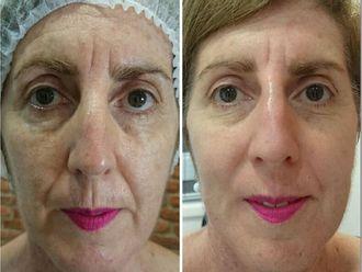 Rejuvenecimiento facial-499914