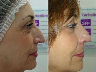 Rejuvenecimiento facial-499915