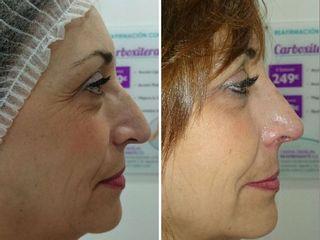 Antes y después Tratamiento para rejuvenecer el rostro