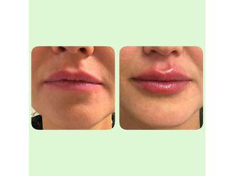 Aumento labios - 632279