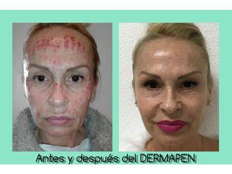Rejuvenecimiento facial-632283