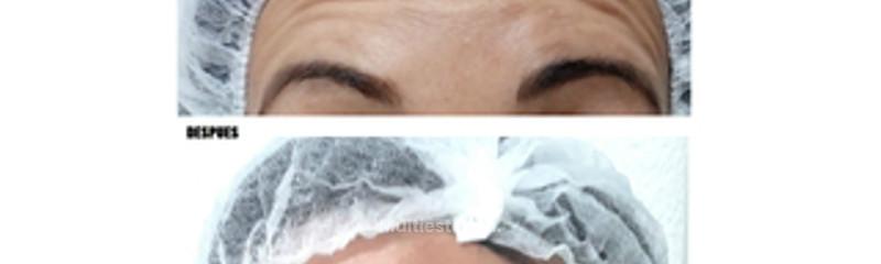 antes y despues botox.jpg