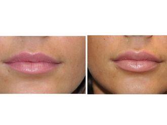 Aumento labios - 488779