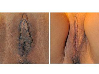 Labioplastia - 490870