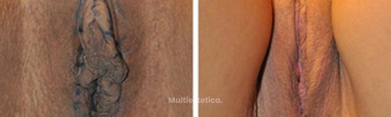 Genitoplastia femenina