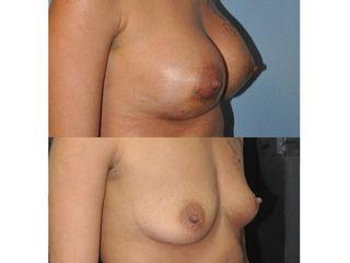 Mamoplastia de aumento retromuscular