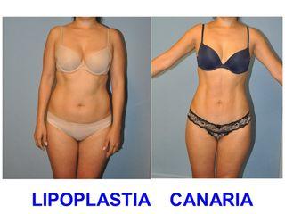 Antes y después Lipoescultura de alta definición muscular (Dres Ojeda & Almeda)