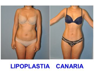 Lipoescultura de alta definición muscular (Dres Ojeda & Almeda)