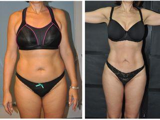 Antes y después Lipoescultura completa + muslos ( Paciente de  52 años )
