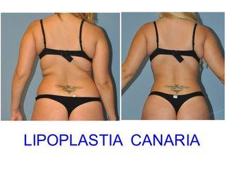 Lipoescultura-591365