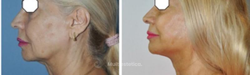 Lifting Facial + Cuello