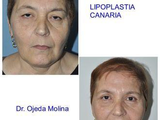 Blefaroplastia-623291