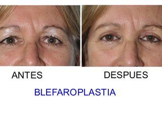 Antes y después Blefaroplastia Superior Bilateral