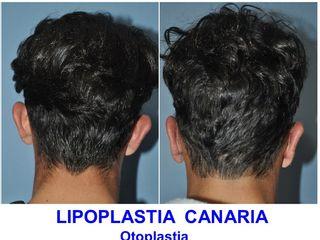 Antes y después Otoplastia Bilateral