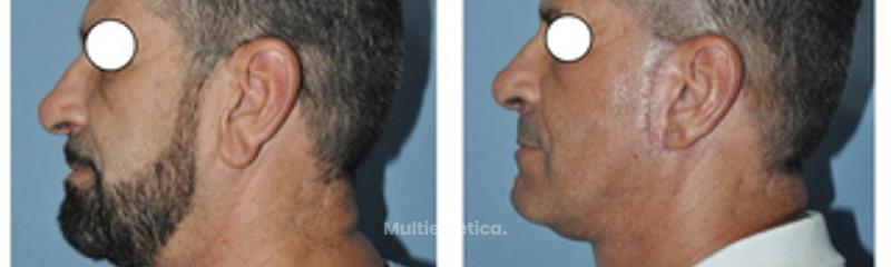 Lifting Facial 1/3 Medio  y cervical + reduccion del Lobulo Auricular