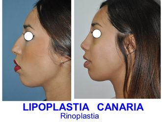 Rinoplastia-625765