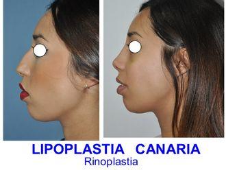 Rinoseptoplastia - 625765