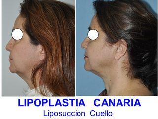 Antes y después Lipoescultura de Cuello y Cara