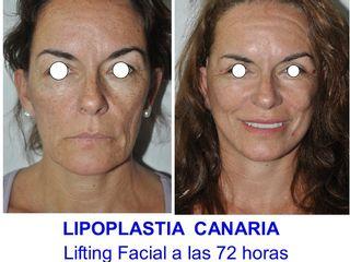 Antes y después Lifting Facial de 1/3 medio y cervical
