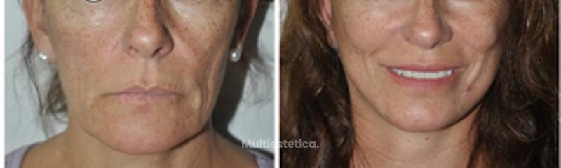 Lifting Facial de 1/3 medio y cervical