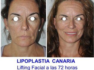 Lifting Facial de 1/3 medio y cervical