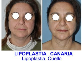 Liposucción-625768