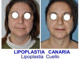 Antes y después Rejuvenecimiento Facial con Lipoescultura Facial