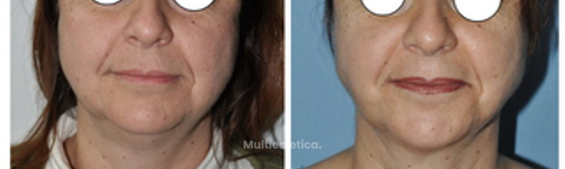Rejuvenecimiento Facial con Lipoescultura Facial