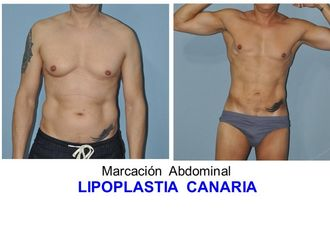 Marcación abdominal - 627743
