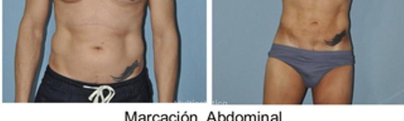 marcación abdominal