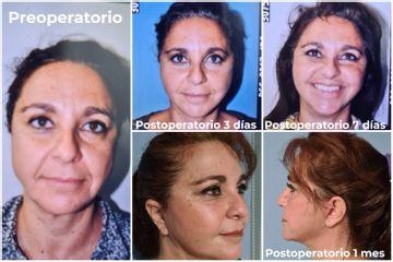 Mini-lifting - Lipoplastia Canaria Dr. Ojeda & Zayuelas