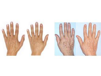 Tratamiento antimanchas-741575