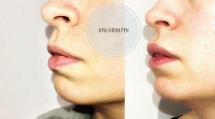 Aumento de labios - Aurimed