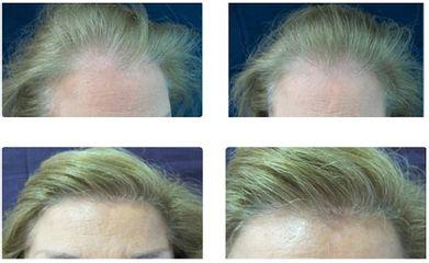 Antes y después microinjertos