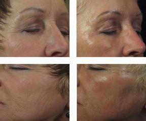 Antes y después Tratamiento arrrugas