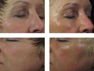 Rejuvenecimiento facial-345885