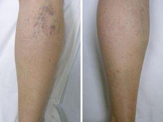 Tratamiento varices-345886