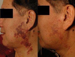 Antes y después Hemangiomas