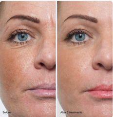 Antes y después bbglow