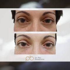 Eliminación de ojeras - Dr. Pau Bosacoma