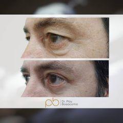 Blefaroplastia - Dr. Pau Bosacoma