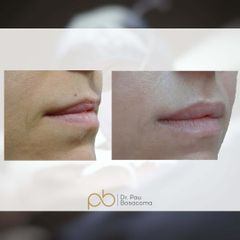 Aumento de labios - Dr. Pau Bosacoma