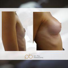 Aumento de pecho - Dr. Pau Bosacoma