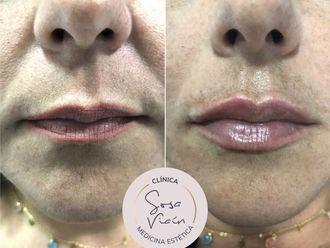 Aumento labios-713427